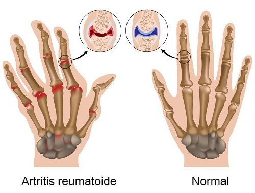 Artritis-reumatoide-