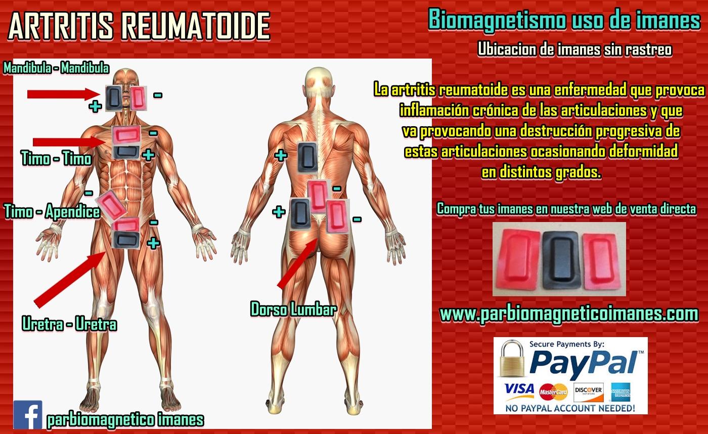 bubango es bueno pal acido urico farmacos que aumentan el acido urico acido urico cansancio