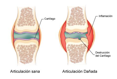 artritis_zps6a972f47